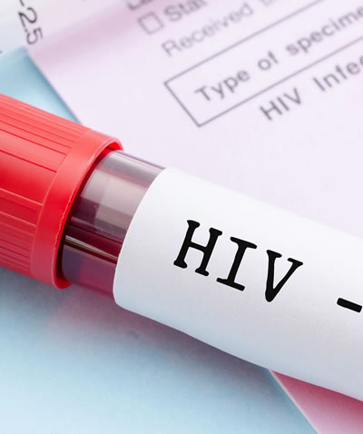 Prevention and Control of HIV